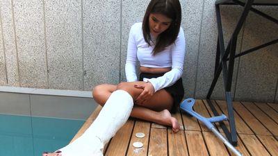 86753 - The car accident - Short Cast Leg movie (SCL)