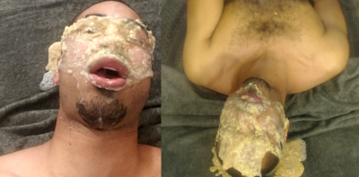 114761 - Facial puke 2x view complete