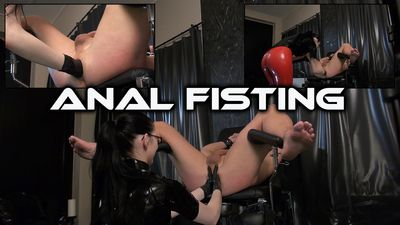45482 - Anal Fisting